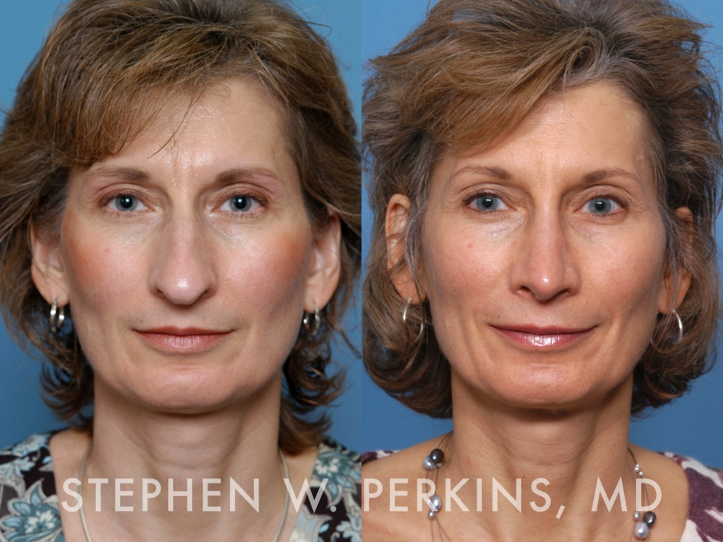 Indianapolis Plastic Surgeons | Dr. Stephen Perkins, MD 07HK