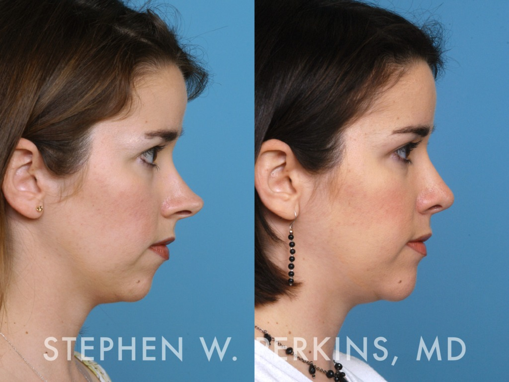 Indianapolis Plastic Surgeons | Dr. Stephen Perkins, MD 09SK