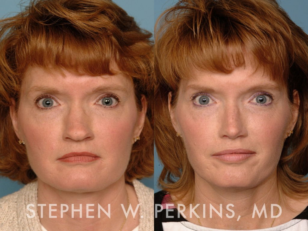 Indianapolis Plastic Surgeons | Dr. Stephen Perkins, MD 10LM