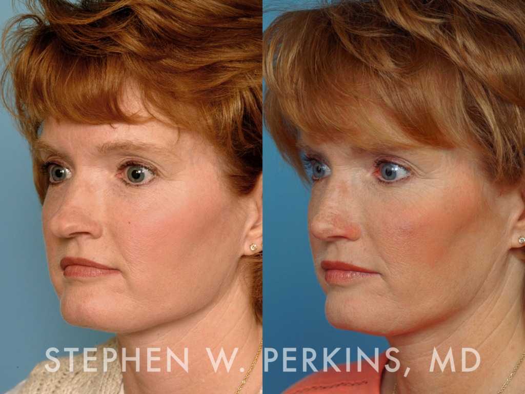 Indianapolis Plastic Surgeons | Dr. Stephen Perkins, MD 11LM