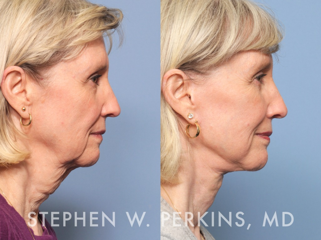 Indianapolis Plastic Surgeons | Dr. Stephen Perkins, MD 11bPK
