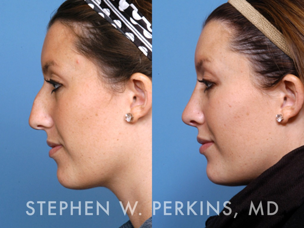 Indianapolis Plastic Surgeons | Dr. Stephen Perkins, MD 12BP