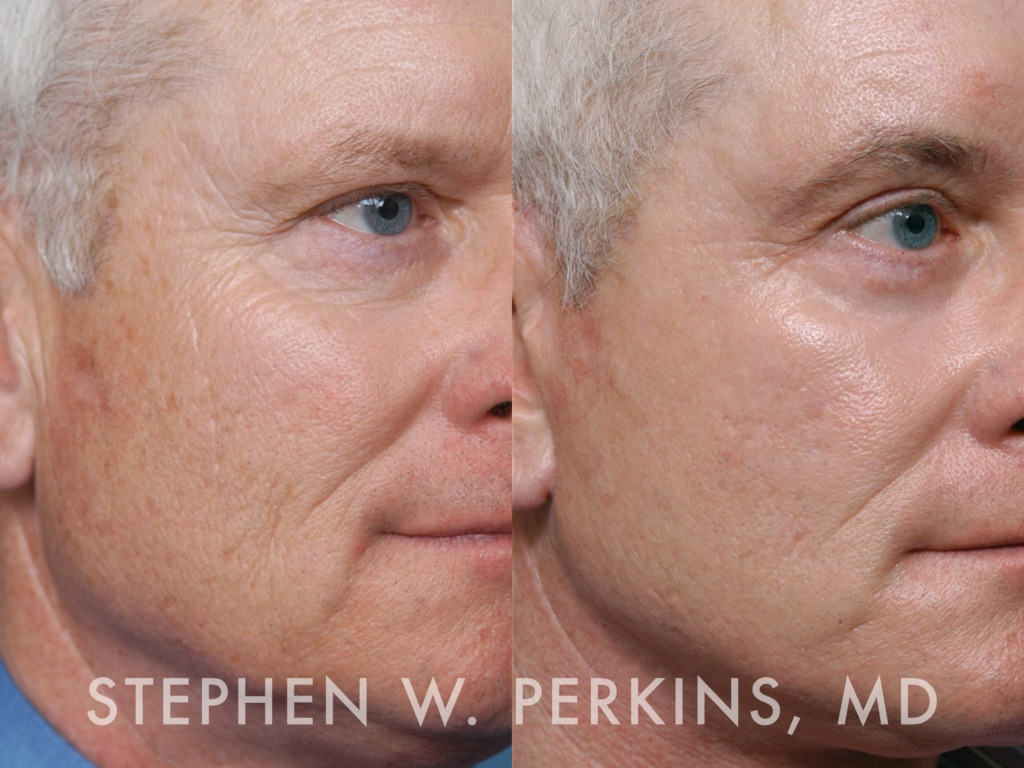 Indianapolis Plastic Surgeons | Dr. Stephen Perkins, MD 13