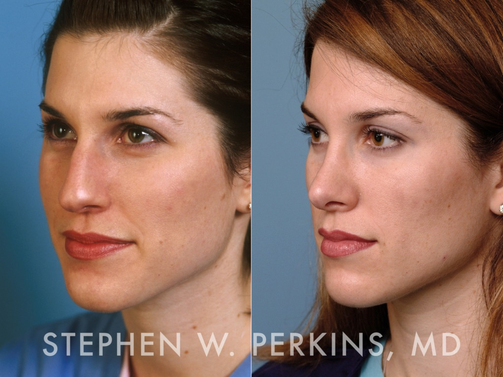 Indianapolis Plastic Surgeons | Dr. Stephen Perkins, MD 13AV