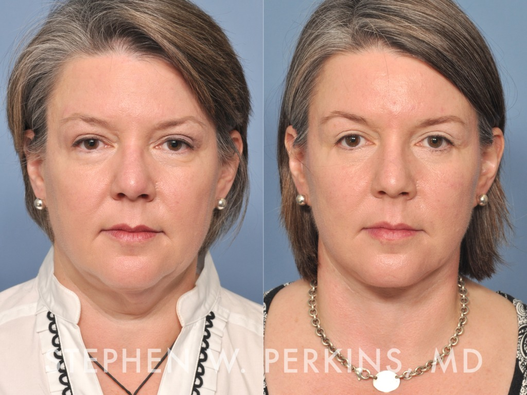 Indianapolis Plastic Surgeons | Dr. Stephen Perkins, MD 13LN