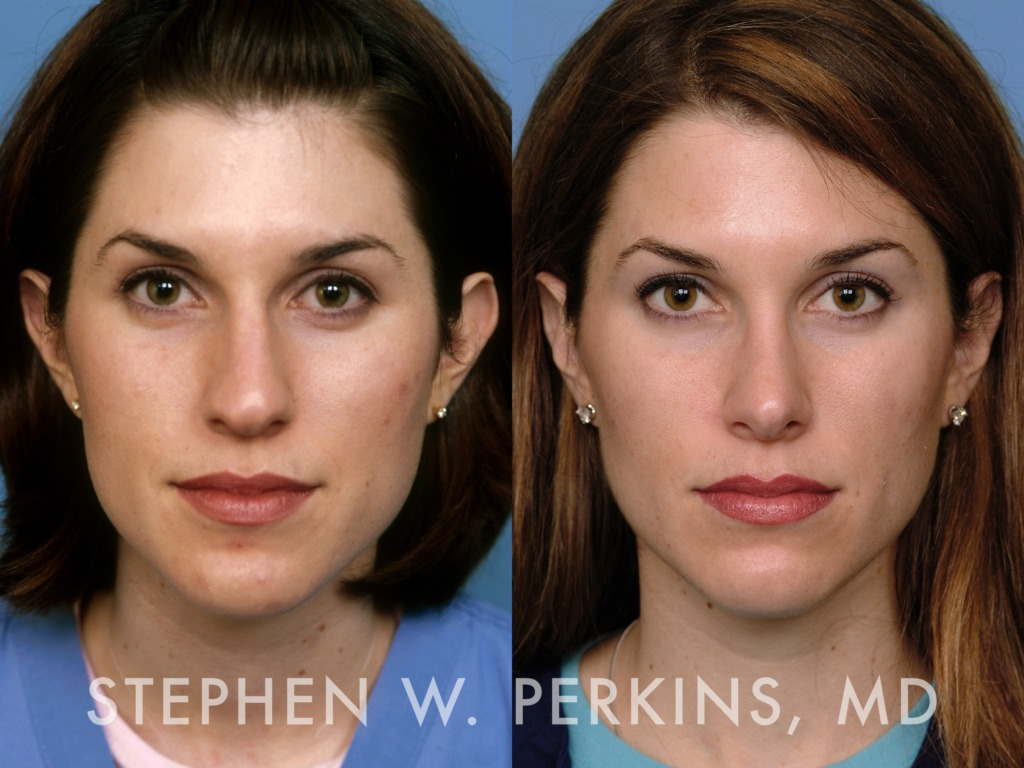 Indianapolis Plastic Surgeons | Dr. Stephen Perkins, MD 14AV