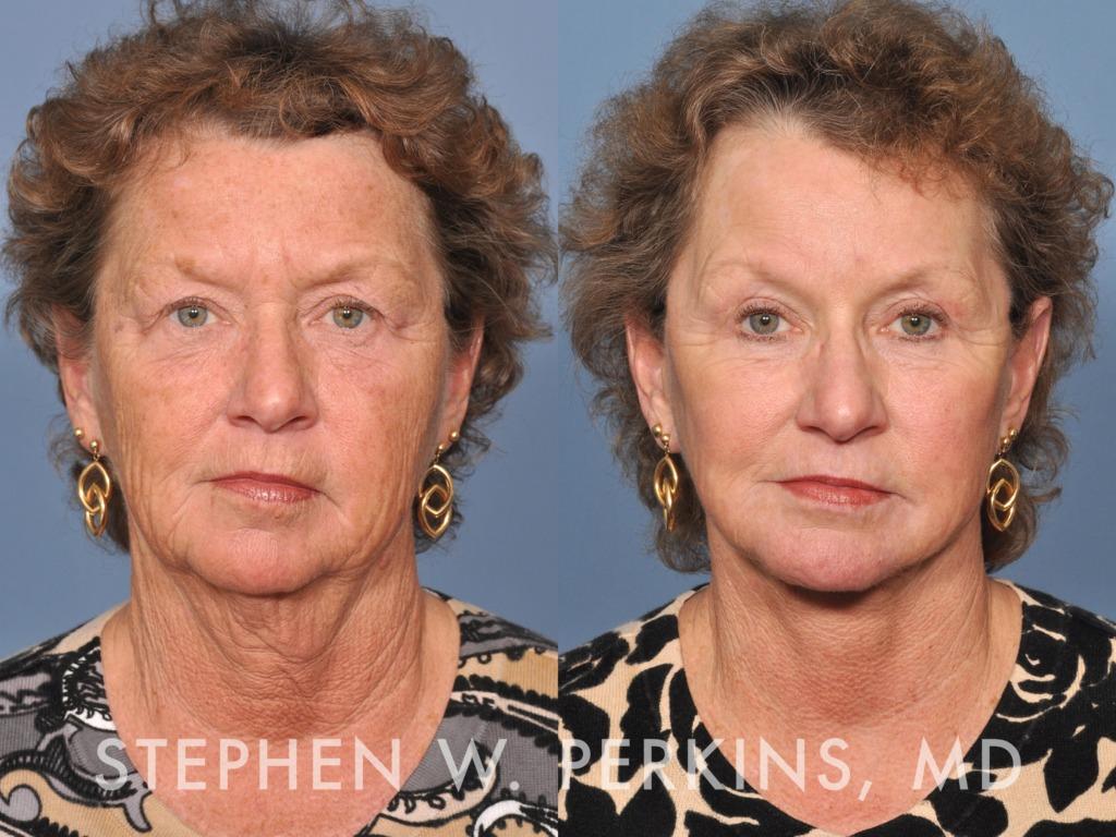 Indianapolis Plastic Surgeons | Dr. Stephen Perkins, MD 15BT