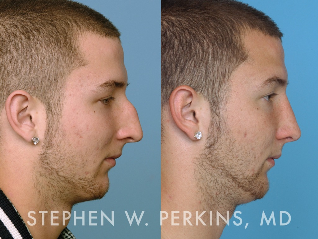 Indianapolis Plastic Surgeons | Dr. Stephen Perkins, MD 15JW