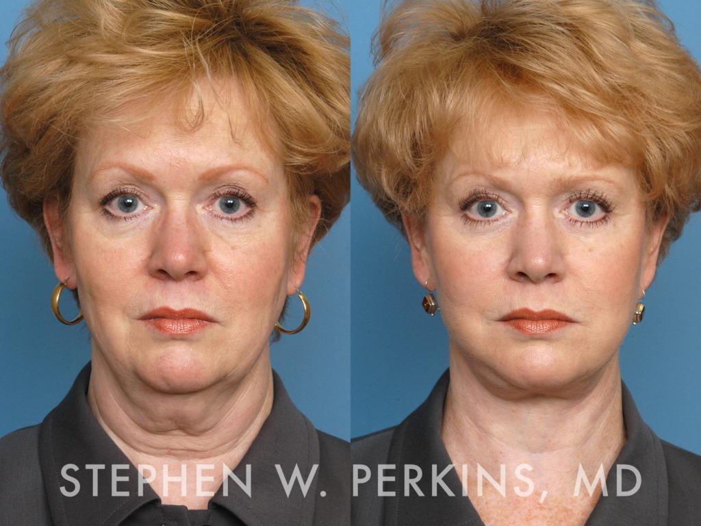 Indianapolis Plastic Surgeons | Dr. Stephen Perkins, MD 16EV