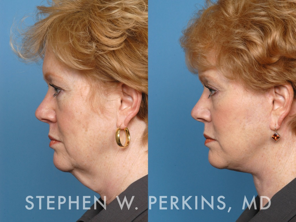 Indianapolis Plastic Surgeons | Dr. Stephen Perkins, MD 17EV