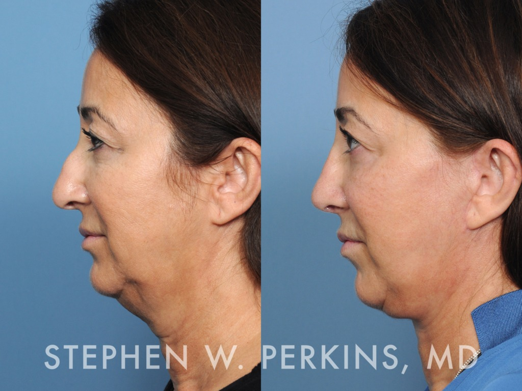 Indianapolis Plastic Surgeons | Dr. Stephen Perkins, MD 18MW