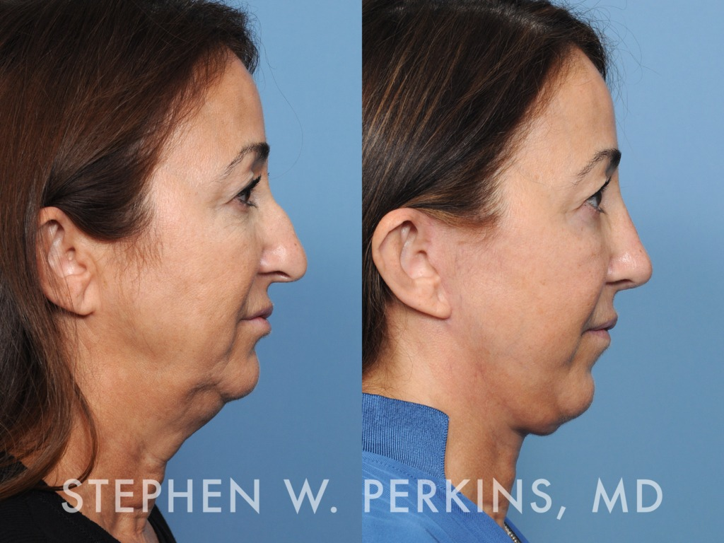 Indianapolis Plastic Surgeons | Dr. Stephen Perkins, MD 20MW
