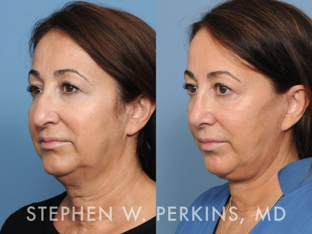 Indianapolis Plastic Surgeons | Dr. Stephen Perkins, MD 21MW