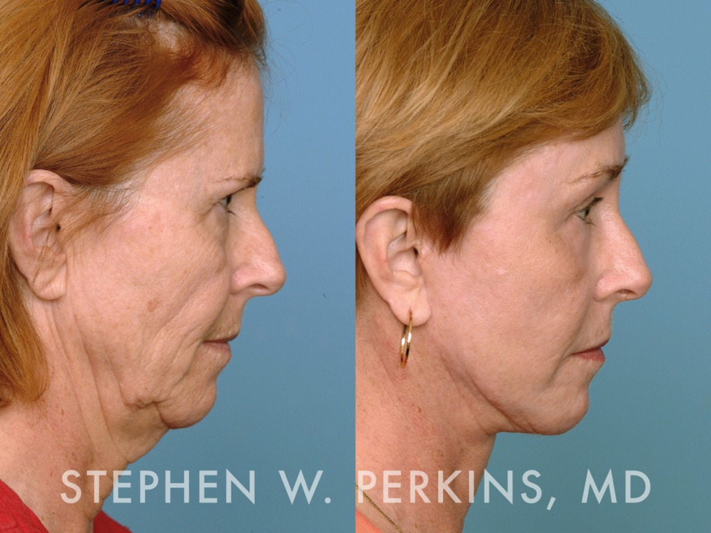 Indianapolis Plastic Surgeons | Dr. Stephen Perkins, MD 27KM