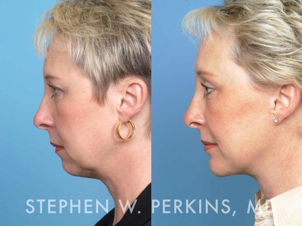 Indianapolis Plastic Surgeons | Dr. Stephen Perkins, MD 30DS