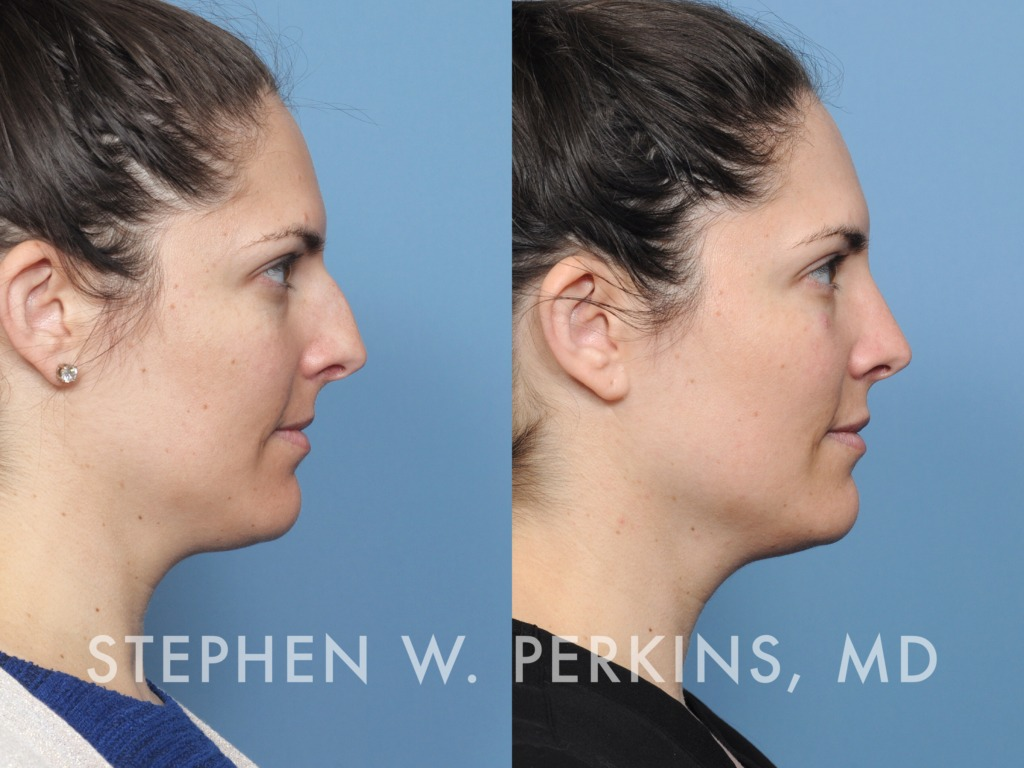 Indianapolis Plastic Surgeons | Dr. Stephen Perkins, MD 35