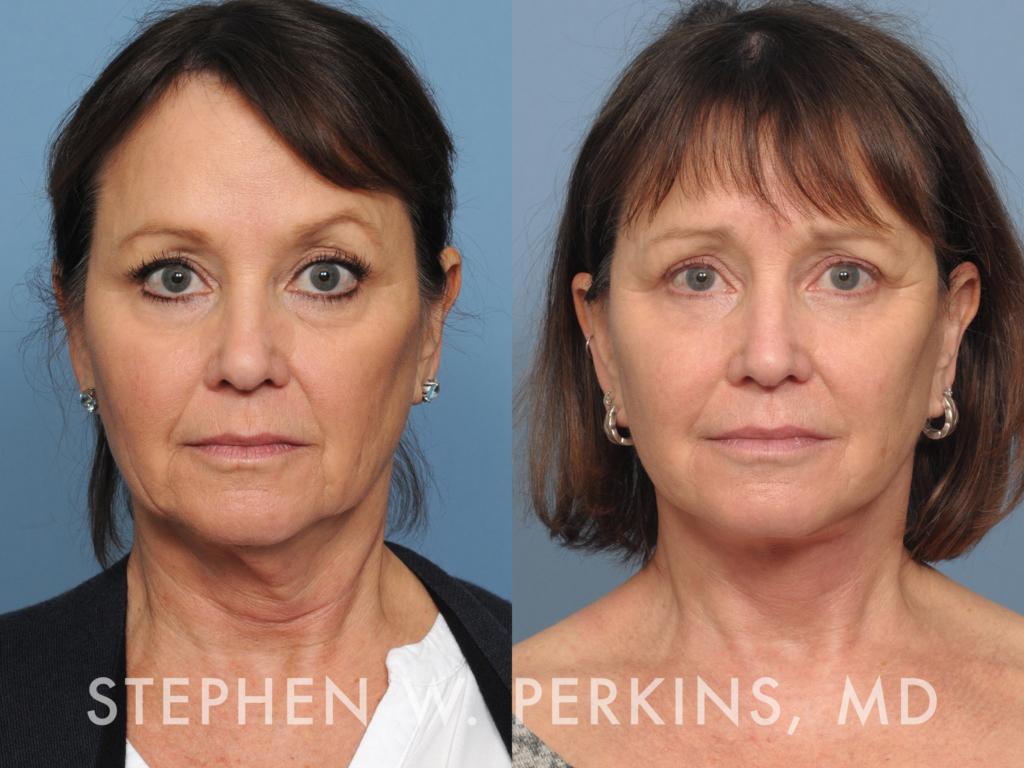 Indianapolis Plastic Surgeons | Dr. Stephen Perkins, MD 28_KR