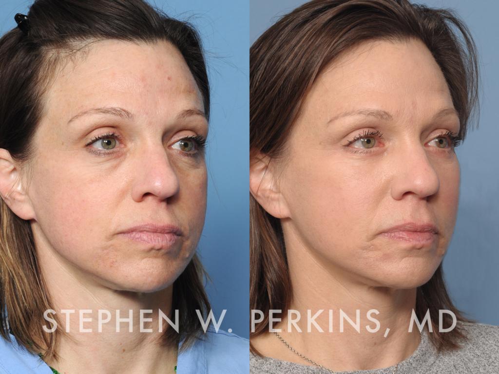 Indianapolis Plastic Surgeons | Dr. Stephen Perkins, MD 31C