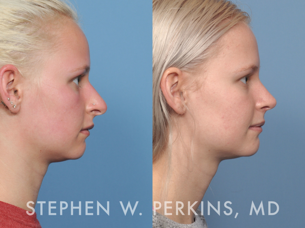 Indianapolis Plastic Surgeons | Dr. Stephen Perkins, MD 45_ES3