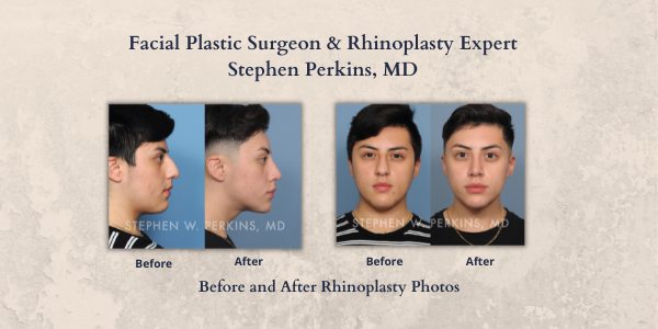 Indianapolis Plastic Surgeons | Dr. Stephen Perkins, MD 600x300-SWP-Rhino-BAfter-Web-News-9-21-21